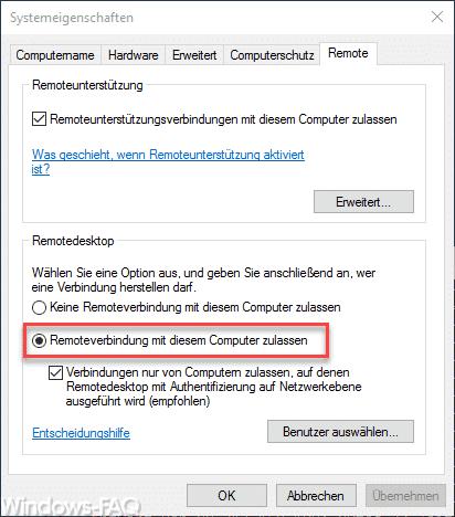 Remoteverbindung mit diesem Computer zulassen.